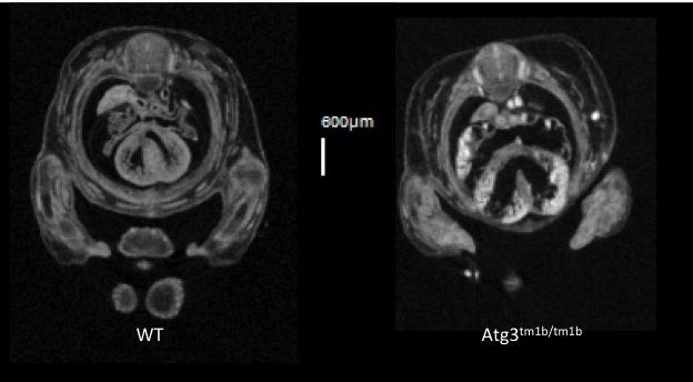 VSD seen in transverse section in Atg3-null mutants.